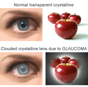 glaucoma unit   innova ocular, Skeleton
