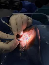 Innova Ocular Clínica Muiños, trasplante corneal