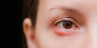 blefaritis causas tipos y tratamientos