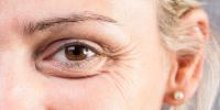 Blefaroplastia: en qué consiste